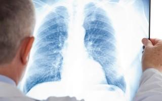 Легионеллезная пневмония. Легионеллез или болезнь легионера