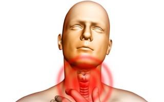 Ларингит: симптомы и лечение у взрослых, как передается болезнь