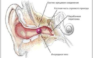 Причины возникновения шума и пульсации в ухе
