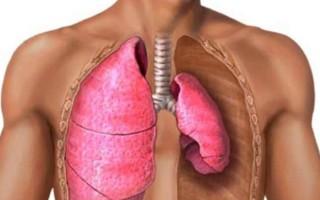 Что такое пневмоторакс легких: причины, симптомы и лечение