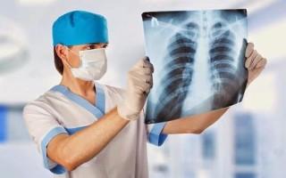 Чем лечить и сколько лечится пневмония у взрослого человека