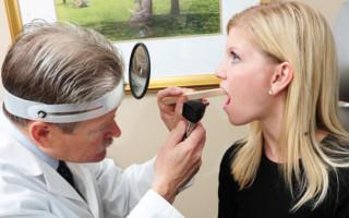 Белое горло — симптом опасных заболеваний