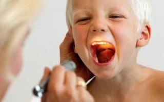 Чем можно лечить аденоиды у детей?