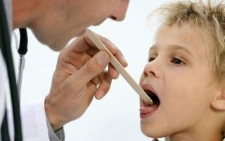 Стоматит и ангина: причины одновременного развития, симптомы и лечение