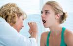 Хроническая ангина: причины, симптомы, лечение
