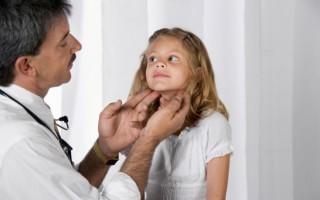 Грибковая ангина: симптомы, диагностика и лечение