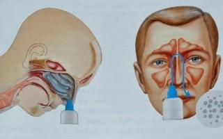 Устройства для промывания носа популярные приборы и аппараты для дома