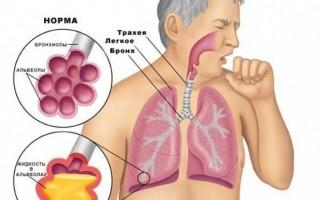 Причины мокроты в горле откуда появляется, почему и что делать