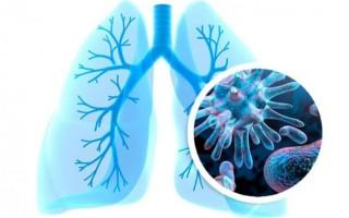 Признаки и симптомы воспаления легких