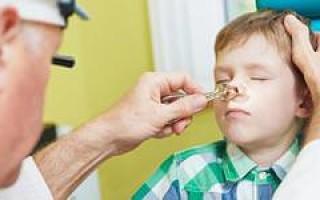 Аденоидный тип лица у ребёнка, особенности и фото