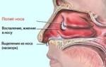 Лечение полипов операцией виды проведения оперативного вмешательства