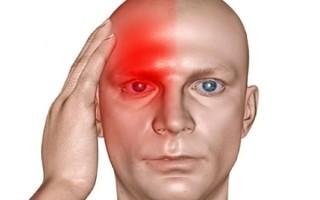 Что делать при болях с правой стороны головы