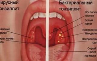 Тонзиллит: признаки, симптомы, лечение