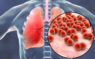 Инфекция пневмококковая: что это такое, причины и симптомы