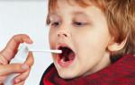 Какие средства можно применять от боли в горле для детей от 3 лет. Рекомендации специалиста