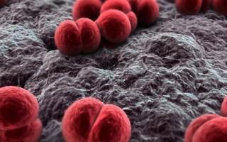 Первые признаки менингита у взрослого человека