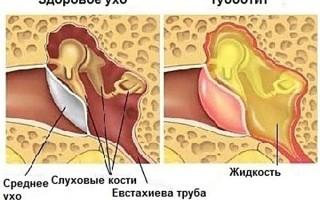 Симптоматика и лечение евстахиита
