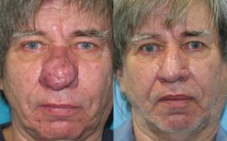 Ринофима носа — что это за заболевание