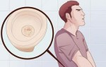 Гусарский насморк: причины, симптомы, методы лечения