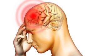 Головные боли и спазмы в верхней части головы