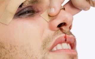 Признаки сломанной кости носа у пострадавшего человека