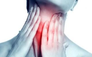 Аллергический фарингит: особенности проявления и лечения