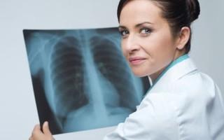 Вирусная пневмония симптомы, какими лекарствами лечить