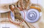 Лечение гнойного отита среднего уха
