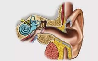 Кохлеоневрит: симптомы и лечение кохлеарного неврита