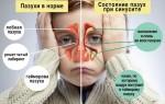 Двухсторонний синусит: особенности болезни