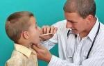 Антибиотики при ларингите, какие антибиотики выбрать?
