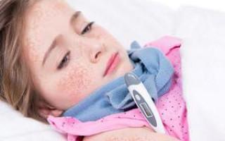 Скарлатина у детей: симптомы и лечение, фото