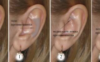 Возможные заболевания ушной раковины человека
