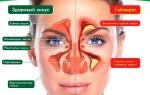 Особенности симптоматики и лечения одностороннего гайморита