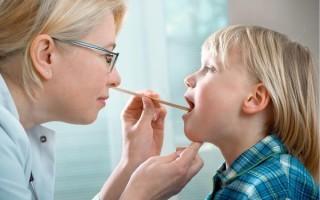Масло туи при аденоидах у детей инструкция, отзывы