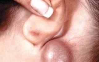 Воспалился лимфоузел за ухом– что делать?