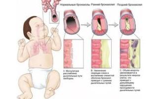 Бронхит у детей: мнение Комаровского и особенности лечения