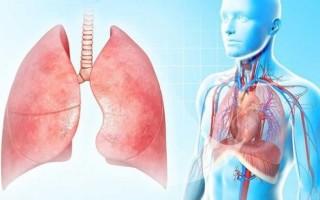Симптомы и лечение плеврита лёгких