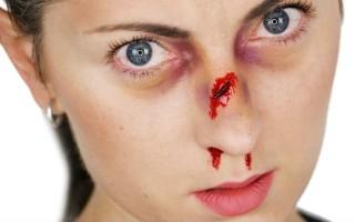 Разбитый нос: в каких случаях обращаться к врачу и как оказать первую помощь