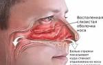 Лечение воспаления слизистой оболочки носа
