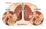 Что это такое — обструкция легких: классификация и лечение