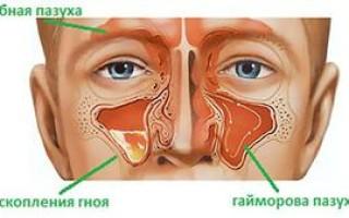 Что такое гайморит, его лечение. Причины кашля при гайморите