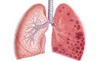 Основные симптомы и лечение буллезной болезни (эмфиземы) легких