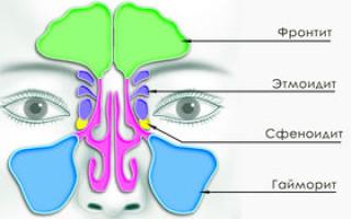 Как лечить фронтит? Симптомы и лечение у взрослых