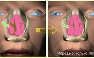 Конхобуллёз (гипертрофия носовых раковин): что это такое?