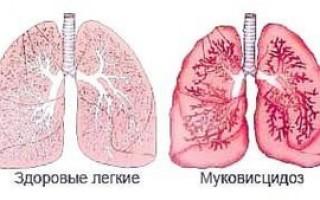 Что это за болезнь — муковисцидоз, симптомы кистозного фиброза