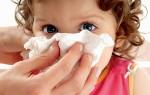 У ребенка заложен нос: симптомы, причины, лечение