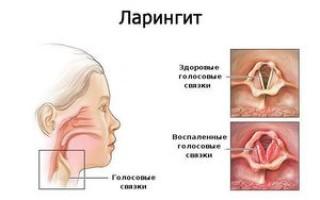 Чем лечить ларингит у взрослых?