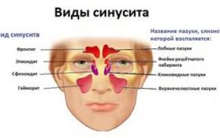 Острый пансинусит и причины его развития, симптомы и лечение