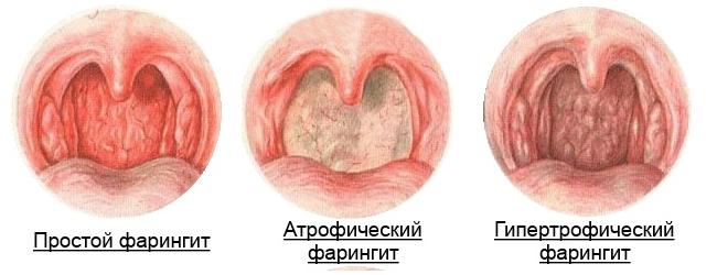 стадии фарингита